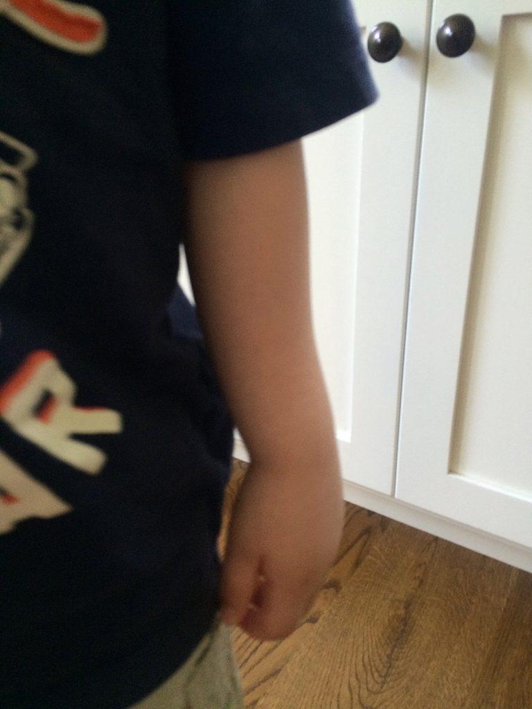 Broken Arm 1